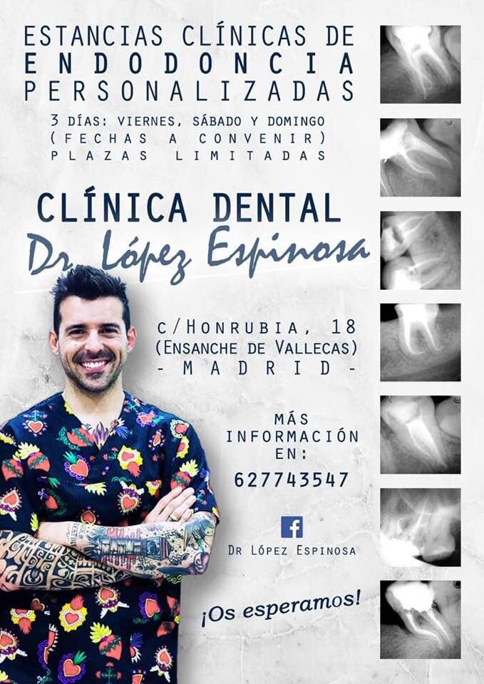 Estancias clinicas de endodoncia jesus Lopez espinosa