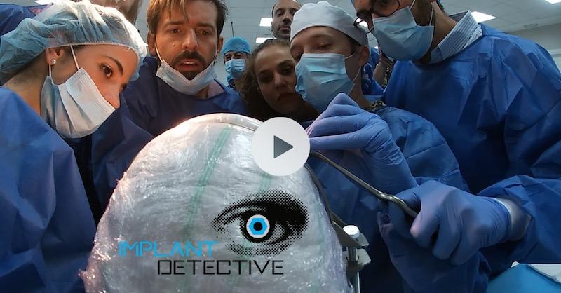 Curso de implantes monocuerpo
