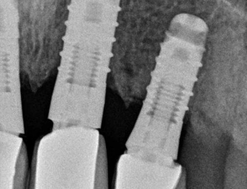 Implantes desconocidos